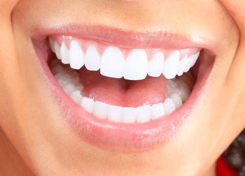 Diş Beyazlatmak